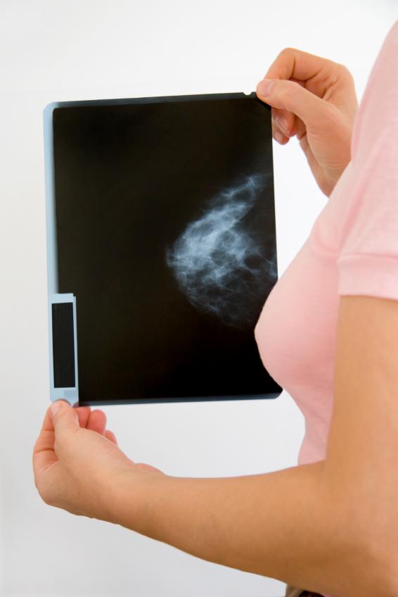 http://drgina.files.wordpress.com/2008/12/mamogram.jpg